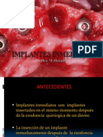 implantesinmediatospowerp-140813120010-phpapp01.pdf