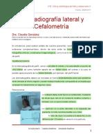 Telerradiografi a y Cefalometri A