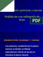 Clases de Respiratorio.ppt2 2017 1