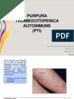 Purpura Trombocitopenica Autoinmune