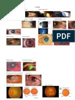 Stase Mata (Gambar)