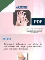 Artritisreumatoide 150706004314 Lva1 App6892