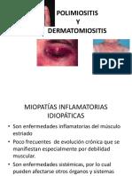 MIOPATÍAS-INFLAMATORIAS  2017