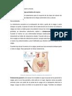 sistectomìa