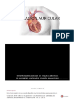 Fibirilacion Auricular