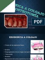 Tecnica a Colgajo y Osteotomia y Odontoseccion