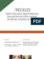 Freckles & Vitiligo