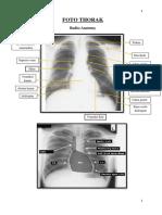 289967535-1-Ringkasan-Radiologi - Copy.pdf