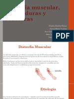 Distrofia Muscular, Quemaduras y Fracturas