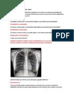 Anatomia Radiológica Del Torax