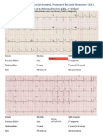 ECG Patterns Worksheet With Annotations