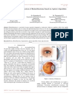 An Approach to the Detection of Retinoblastoma based on Apriori Algorithm