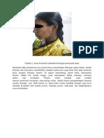 Translate Lepra Halaman 2 (Ajeng)Docx