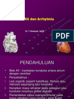 EKG 2 Arrytmia