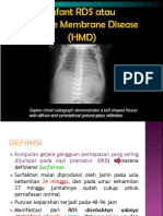 Hialin Membrane Disease.ppt