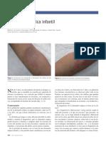Dermatitis Atopica Infantil 2015
