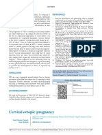 S - Cervical Ectopic Pregnancy
