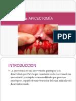 78053301-La-APICECTOMIA.pptx