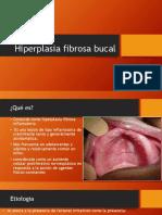 Hiperplasia fibrosa bucal