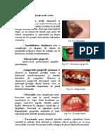 184419579-Complicatii-Orale-in-Leucemii-La-Copii-2.doc