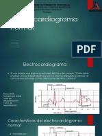Electrocardiograma Normal (1)