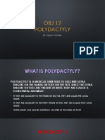 Polydactyly Ppt
