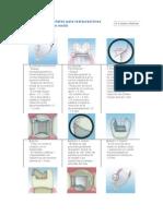 Preparaciones Dentales Para Restauraciones Indirect As Libres de Metal