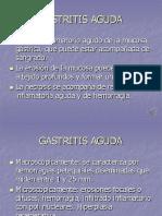 Sem8 Gastritis y Ulcera Gastrica