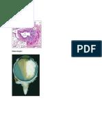 Osteosarkoma,Chondrosarkoma,Retino Blastoma