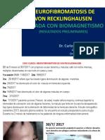 NEUROFIBROMATOSIS TRATADA CON BIOMAGNETISMO MÈDICO