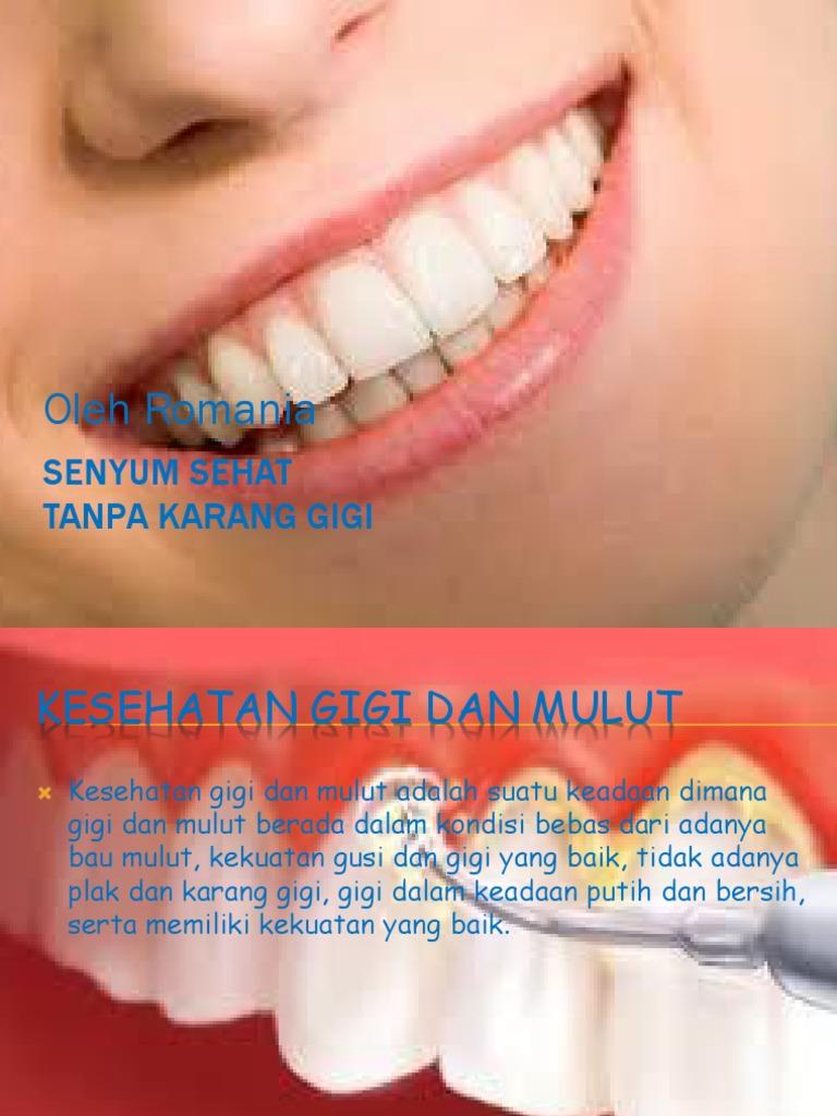 Penyakit Gigi Dan Mulut