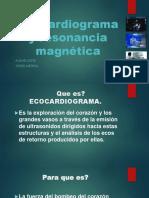 Diapositiva Ecocardiograma y Resonacia Magnetica Aldair Lopez y Yeisith Medina Enfermeria