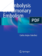 Carlos Jerjes-Sánchez (Auth.)-Thrombolysis in Pulmonary Embolism-Springer International Publishing (2015)