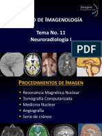 Tema 11 Neuroradiología I