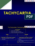 Tachycardia.ppt