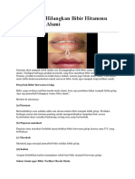 Begini Cara Hilangkan Bibir Hitammu Agar Merah Alami