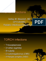 Torch Infection Ppt
