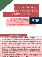Manejo de Las Lesiones Premalignas y Malignas Del Cancer Cervical