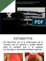 17-estomatitis-130706230328-phpapp01