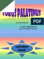Torus Palatinus