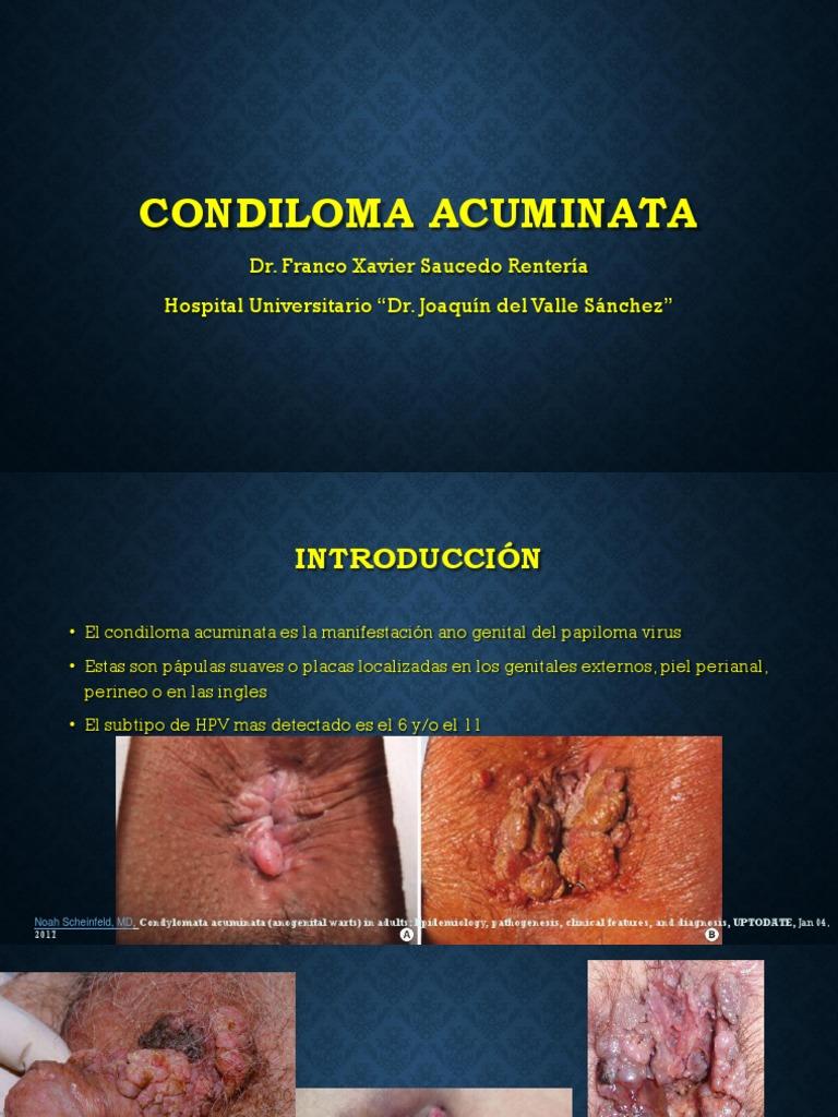 condyloma acuminata és hpv