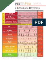 Basic EKG ECG Rhythms Cheatsheet