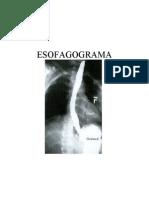 Esofagograma