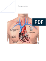 Marcapasos cardíaco imprimir