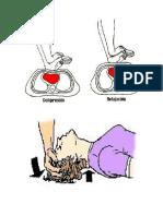 Reanimación Cardiopulmonar Cerebral