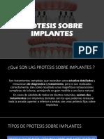 Protesis Sobre Implantes Seminario