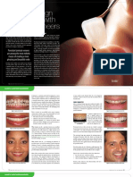 dental veener