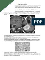 Caso Clinic Cerebelo (1)