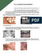Clinica de La Infeccion Odontogénica