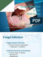 Copy of Oral Candidiasis -Drg Desy